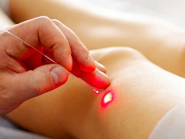 Физиотерапия и лазеротерапия